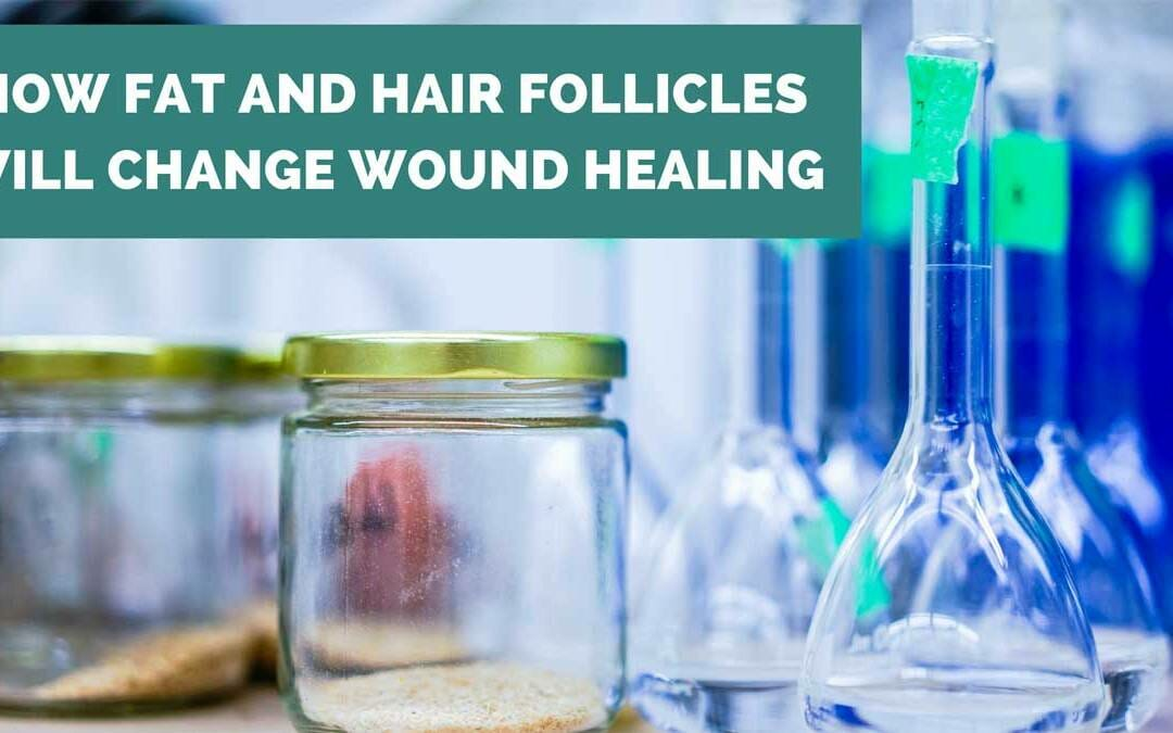 How Fat and Hair Follicles Will Change Wound Healing and Scars